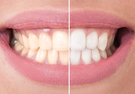 Clínica carillas coronas blanqueamiento dental