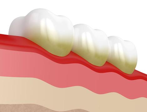 Clínica periodoncia Madrid