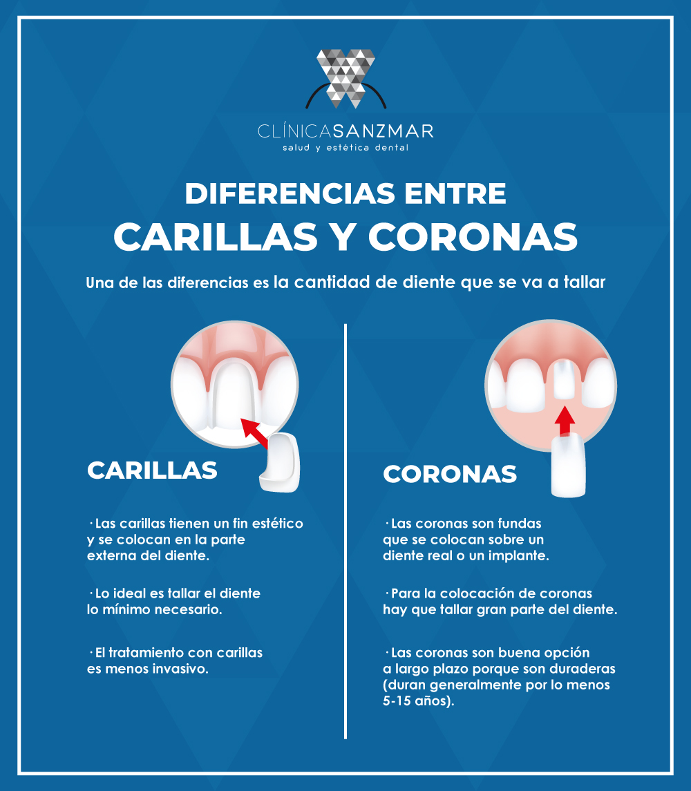 diferencias-entre-carillas-y-coronas-clinica-dental-madrid-1