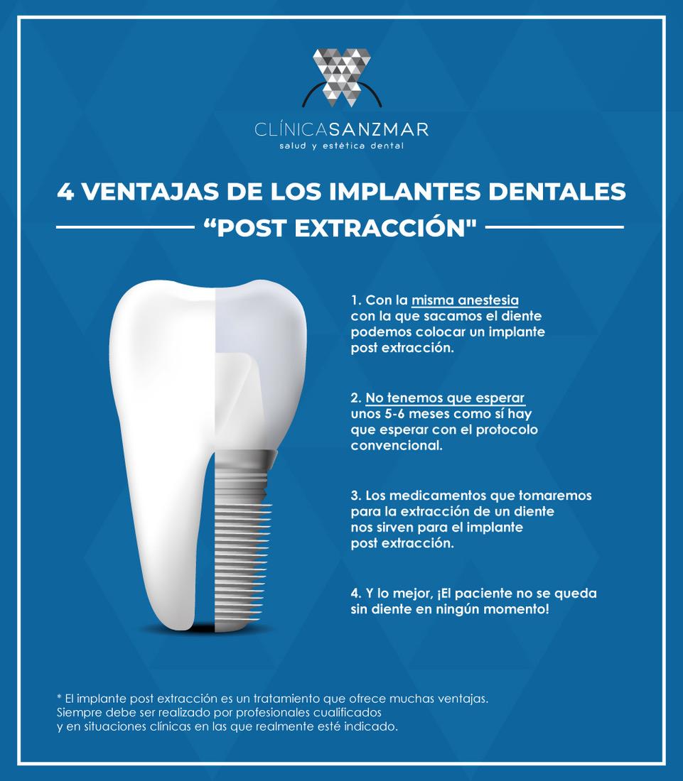 Implantes dentales inmediatos