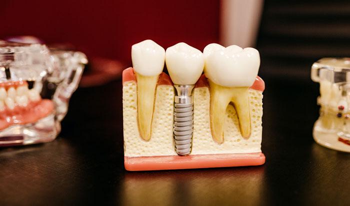fases-implantes-dentales-clinica-dental-madrid