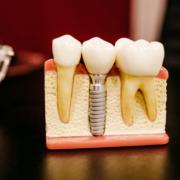 implantes-dentales-clinica-dental-madrid