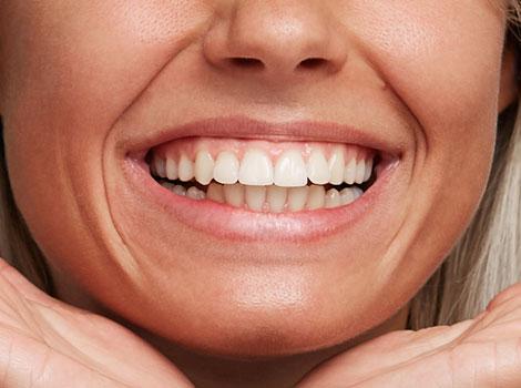 implantes dentales clinica-dental dentista madrid