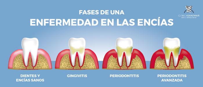 Clínica de limpieza dental profesional en Madrid